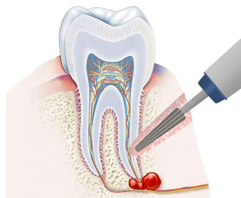 Лечение кисты зуба